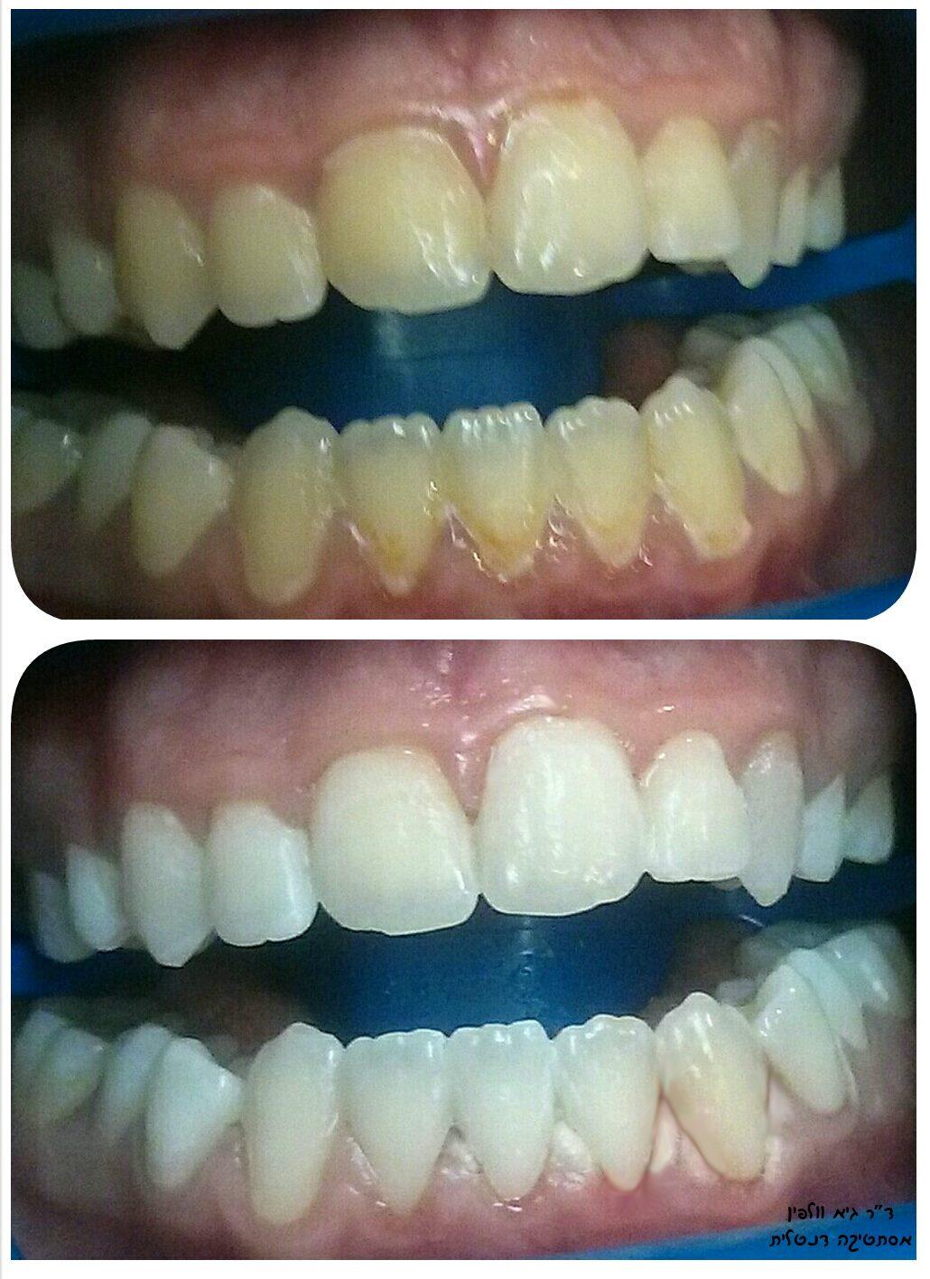 """אסתטיקה דנטלית, אסתטיקה ברפואת שיניים, חיוך לבן ויפה, הלבנת שיניים, ד""""ר גיא וולפין"""